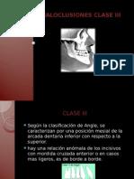 CLASE-III-1