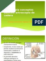 Artroscopía de Cadera
