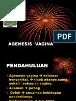 Agenesis Vagina