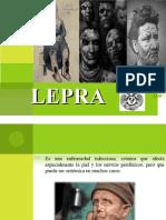 historia natural de lepra
