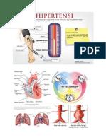 hipertensi hipertensihipertensihipertensi hipertensihipertensi