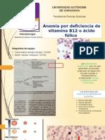 Anemia Por Deficiencia de Folatos o Vitamina B12