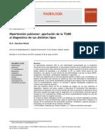 HTP en TC y Sus Tipos