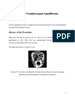 Juvenile Nasopharyngeal Angiofibroma.docx
