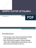 Herpes Zoster Oftalmika