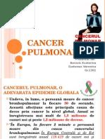 Cancer pulmonar.ppt