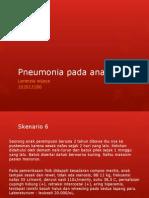 244877545 Pneumonia Pada Anak