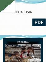 HIPOACUSIAS DIAPOS