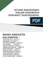 Bantuan Radiografi Dalam Diagnosa Penyakit Periodontal