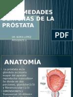 Enfermedades Benignas de La Próstata Clase