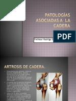 Patologías Asociadas a La Cadera