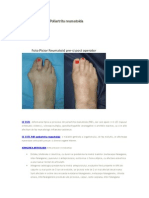 Poliartrita reumatoida.doc