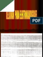 Presentation EKG
