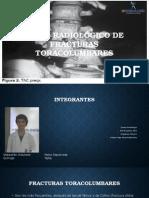 Atlas Radiológico de Fracturas Toracolumbares (2)
