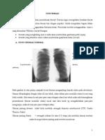 Tugas Radiologi Thorax