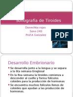 sonografia de tiroides