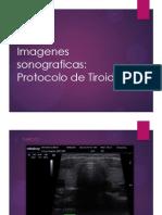 imagenes sonograficas
