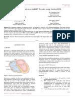 ECG Signal Analysis With DB6 Wavelet Using Verilog HDL