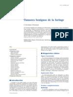 Tumores Benignos de Orofaringe e Hipofaringe