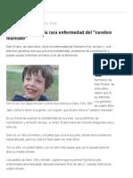 El Niño Que Sufre La Rara Enfermedad Del _cerebro Mareado_ - Lanacion