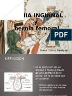 Hernias inguinales y femorales