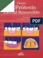 Diseño de prótesis parcial removible (Loza)