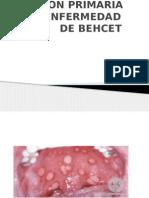 ACTUALIZACIONES EN LA ATENCION DE LA ENF. DE BEHCET
