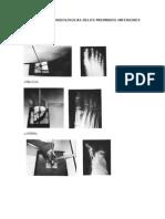 Proyecciones Radiologicas Delos Miembros Inferiores