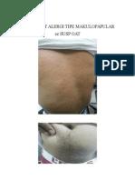 Erupsi Obat Alergi Tipe Makulopapular