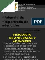 adenoiditiseha-140513174309-phpapp01