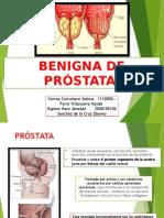 prostatite fine cura permixon sintomo urinario persistente