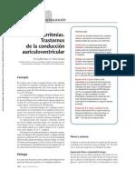 Bradiarritmias-Trastornos de la conducción auriculoventricular