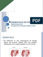 Hidrocele en Pediatria
