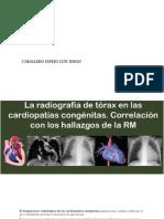 DILATACIÓN-AURICULAR-DERECHA-IZQUIERDADilatación Auricular Derecha Izquierda y Ventricular Derecha Izquierda