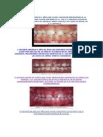 Paciente varón de 6 años que acude a revisión presentando a la exploración una fusión dentaria de 6.docx