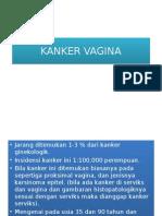 Kanker Vagina Tugas Tutorial Modul 3.Ppt