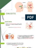Sinusitis patologia