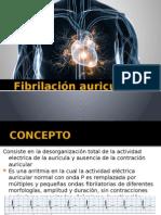 fibrilacin auricular