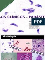 Caso Clinico Toxoplasmosis