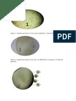 Informe1-morfologia