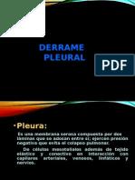 TEP + DERRAME PLEURAL