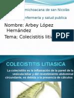 COLECISTITIS LITIASICA.pptx