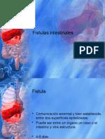 Fistulas Intestinales