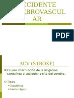 Accidente Cerebrovascular Derecho