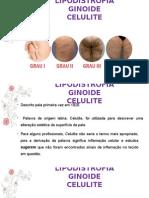 LIPODISTROFIA GINOIDE EQUILIBRA