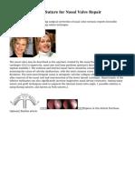 Intranasal Flaring Suture for Nasal Valve Repair