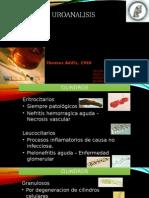 uroanalisis - informacion