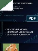 SUPURACIONES PULMONARES.pdf