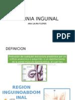 Hernia Inguinal PPT