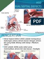 ASD.ppt